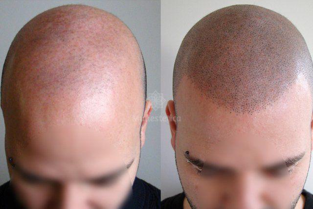 La técnica que es furor: el falso tatuaje para disimular la calvicie