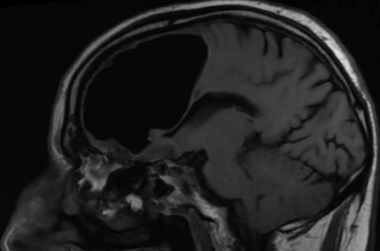 Hallaron hueco de aire donde debía estar el cerebro de un hombre